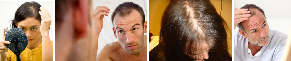 hair loss images